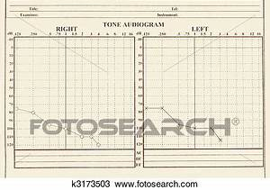 Hearing Medical Chart Showing Audiology Stock Image