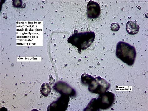 urine particles    minerals  kb file