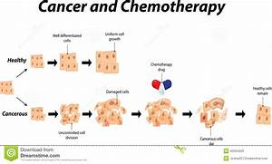 Cancer And Chemotheraphy Stock Vector  Illustration Of Cells