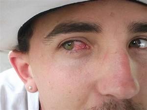 Eye, allergies : Home, remedies, symptoms medications