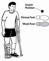 Crutches Crutch Hod Pravilno Stapa Upmc Koriscenje Stake sketch template