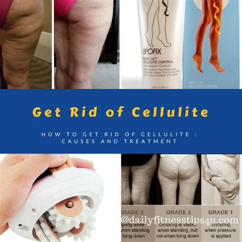How To Get Rid Of Cellulite  Causes And Treatment. Sharepoint 2010 Features List. Mortgage Online Application Retail Ad Agency. Roth Ira Savings Calculator Get Bsn Online. Mercy School Of Nursing Toledo. Printer Copier Scanners Top U S Cities To Live. Top Contemporary Music Schools. Online Counseling Psychology Degree. Stanley Carpet Cleaners Coupons