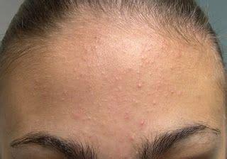 comment enlever les microkystes au visage naturellement