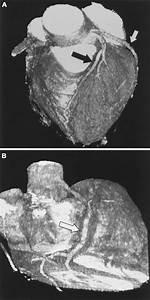 Noninvasive Coronary Angiography By Retrospectively Ecg