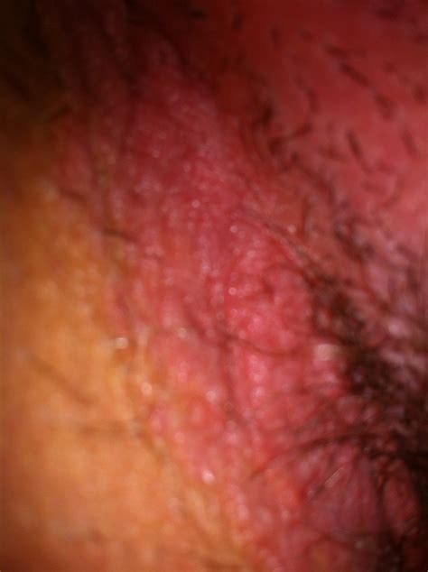 Genital Rash Pictures Pictures Photos