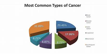 Cancer Types Common Cancers Linked Lung Overweight
