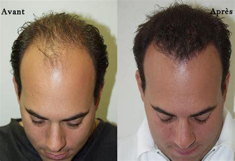 Avant Apres Greffe Cheveux Miami