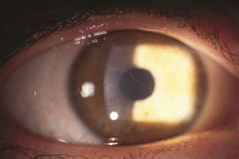 enlarged corneal nerves american academy  ophthalmology