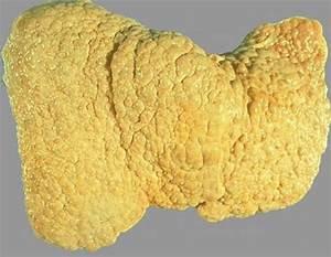 Лечение печени восстановление клеток печени