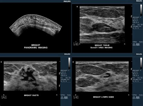 Breast Ultrasound Images Breast Lump Ultrasound Pictures