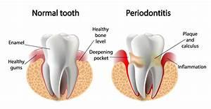 The Hidden Connection Between Gum Disease And Stroke