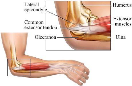 elbow surgery joint pain treatment surgery