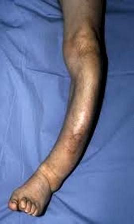 pagets disease