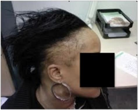 Receding Hairline, FUE Treatment & Patient Photos