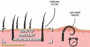 How To Prevent Ingrown Hairs  U00ab Ever Unfolding