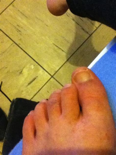 truc noir au pied et petit point rouge douleur forum sant 233