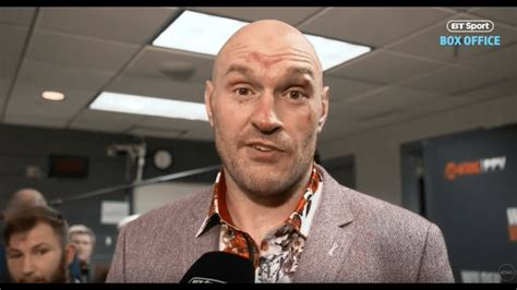 Chills! Tyson Fury reacts to Wilder result in his first ...