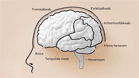 spraakcentrum in de hersenen