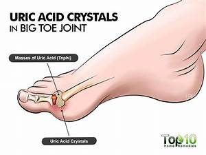 10 Natural Ways To Lower Uric Acid Levels