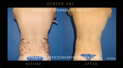 pack abs implants  nyc
