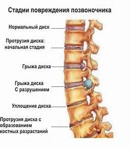 Шейный остеохондроз головокружение симптомы и лечение