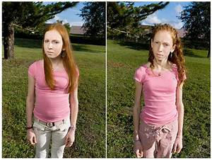 bulimia-before-and-after-02