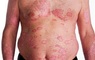 Psoriasis Symptoms and Signs
