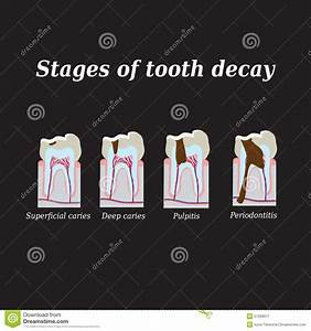Stages Of Development Of Dental Caries  Vector Stock Vector