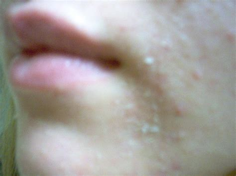 Bay 4 Peeling, Chemical Peel, Pictures, Photos