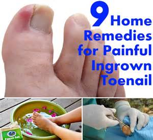 Ingrown Toenail Treatment Home Remedy