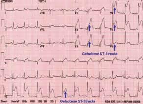 EKG St Elevation Myocardial Infarction Heart Attack