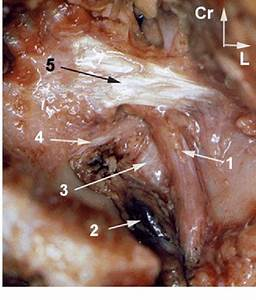 Figure 2 From Anatomical Basis Of The Suprascapular Nerve