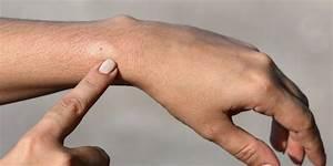 ontsteking in voet symptomen