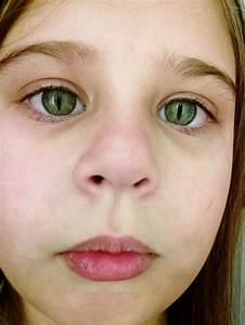 Cat Eye Syndrome | Goregrish