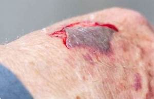 Signs and Symptoms of Abrasion |IYTHEALTH.com
