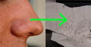 Maske Gegen Unreine Haut : mitesser endlich loswerden mit diesen 2 einfachen zutaten nie wieder unreine haut ~ Frokenaadalensverden.com Haus und Dekorationen