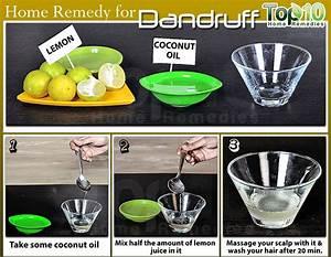 how to reduce dandruff naturally