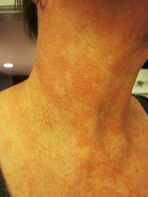 Pictures Of Rashes And Skin Rash Photos  Healthy Skin Care