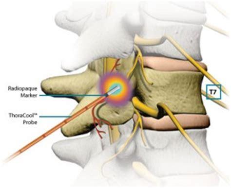 cervical ablation neck