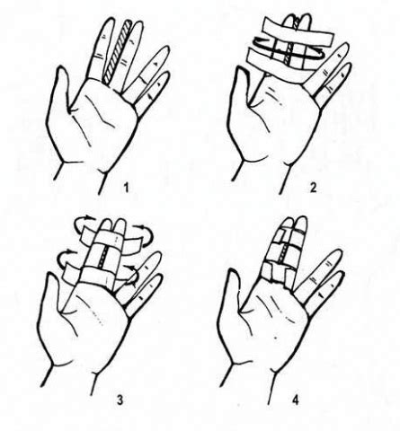 Tejpování kloubu prstu
