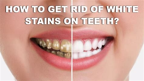 how to get rid of white stains teeth with home remedies get rid of white spots teeth