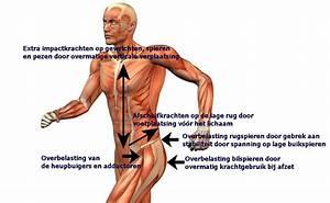 pijn in onderrug met uitstraling naar benen