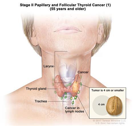 Thyroid Cancer Treatment Pdqpatient Version National