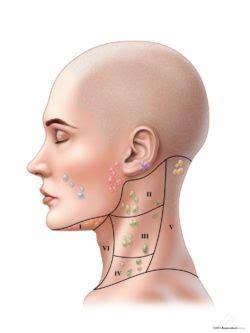 female left lymph nodes  regions   neck