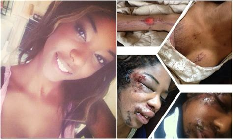 Model Shares Photos Of Domestic Violence Attack On