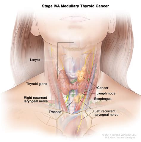 Cancer Lymph Nodes Throat Cancer In Lymph Nodes Pictures