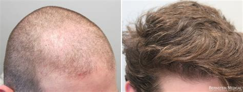 spironolactone hair loss before and hair loss medication propecia rogaine bernstein medical