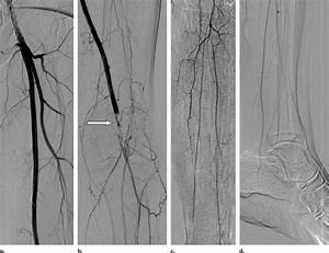 Endovascular Treatment Of Acute Limb Ischemia Secondary To