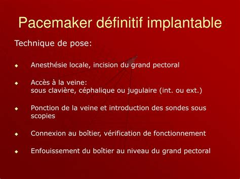 ablation chambre implantable ppt pace makers powerpoint presentation id 235707