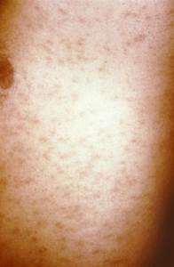 pityriasis rashes - pictures, photos